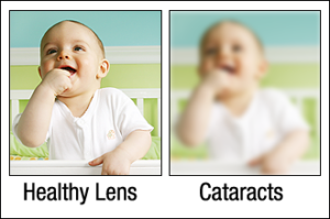 what people with cataracts see